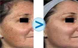 Les crèmes pour lélimination de la pigmentation
