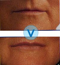 La gélatine le masque pour la personne de la photo jusquà et après